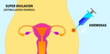 Estimulacion Ovarica